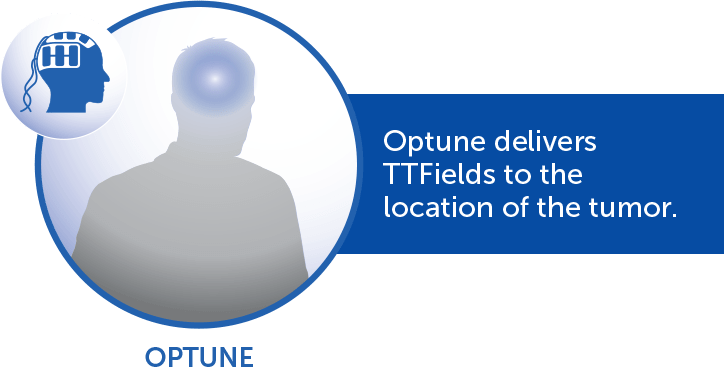 How Optune® delivers TTFields to tumor location