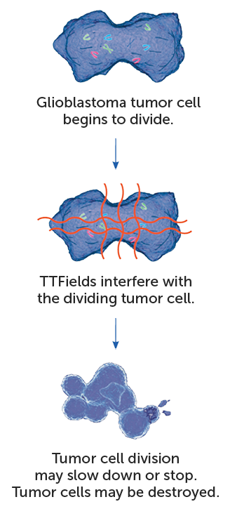 TTFields interfere with glioblatoma tumor cell division. This action slows or stops glioblastoma cells from dividingTTFields interfere with glioblatoma tumor cell division. This action slows or stops glioblastoma cells from dividing
