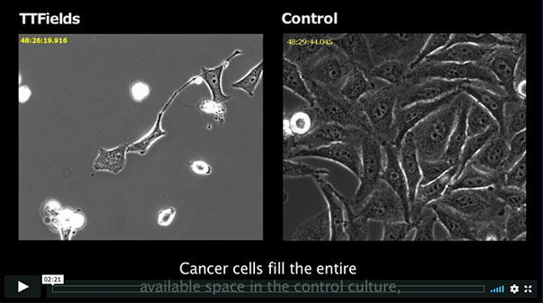 See how TTFields work to disrupt cancer cells